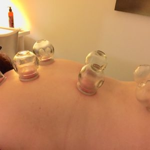 cupping at Shine Health